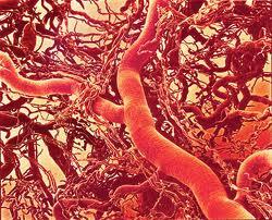 Aterogenese